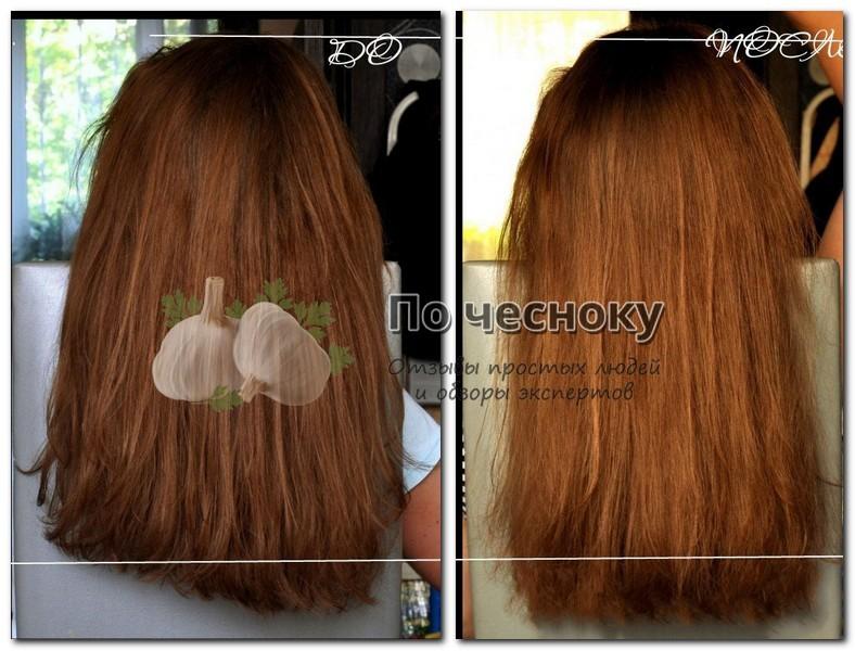 Глицерин для волос. ПРИМЕНЕНИЕ глицерина для волос
